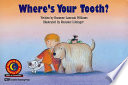 Where's Your Tooth?